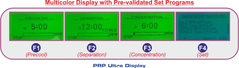 PRP-Ultra-Display
