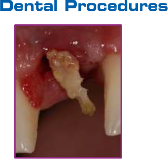 PRP-Ultra-dental